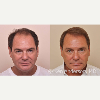 57yo man -  ARTAS Robotic Hair Transplant, and PRP with ACell before 3008928