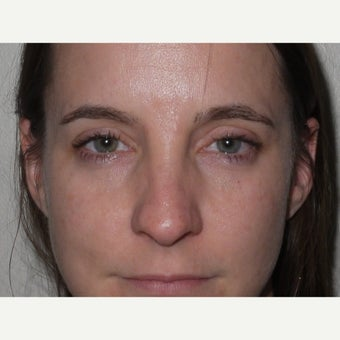 25-34 year old woman treated with Eye Bags Treatment