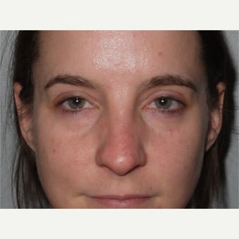 25-34 year old woman treated with Eye Bags Treatment before 2359613