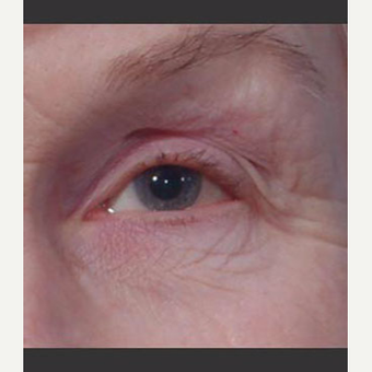 55-64 year old woman treated with Laser Treatment before 3711036