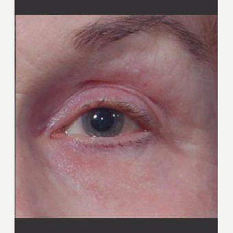 55-64 year old woman treated with Laser Treatment after 3711036