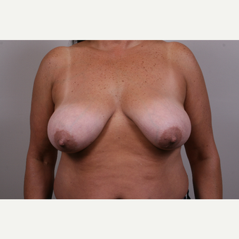 35-44 year old woman treated with Breast Reduction before 3769552