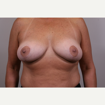 35-44 year old woman treated with Breast Reduction after 3769552
