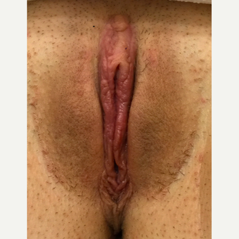 18-24 year old woman treated with Labiaplasty after 3292800