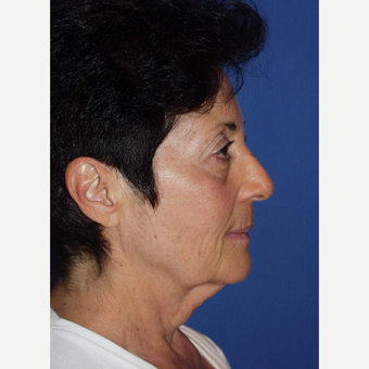 55-64 year old woman treated with Facelift before 3033669