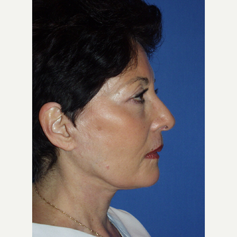 55-64 year old woman treated with Facelift after 3033669