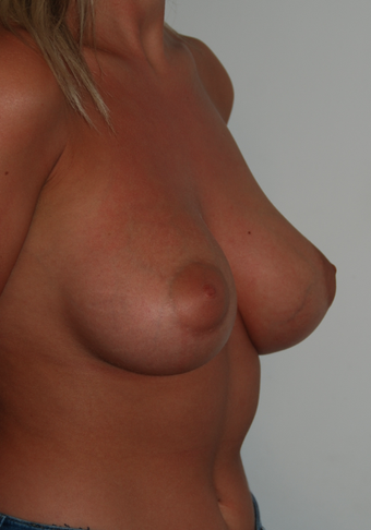 Bilateral Breast Augmentation with Anatomical Teardrop Implants - muscle split technique. after 1410091