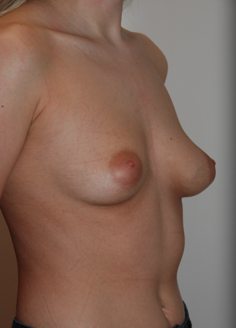 Bilateral Breast Augmentation with Anatomical Teardrop Implants - muscle split technique. before 1410091
