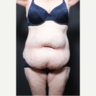 45-54 year old woman treated with Weight Loss before 1957227