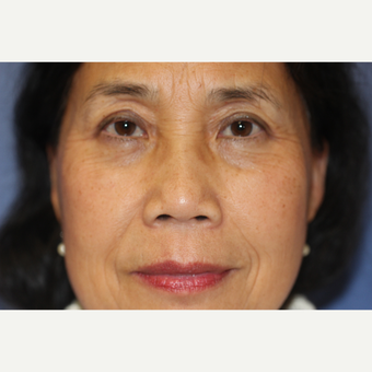 66 year old woman treated with Upper & Lower Eyelid Surgery after 3849760