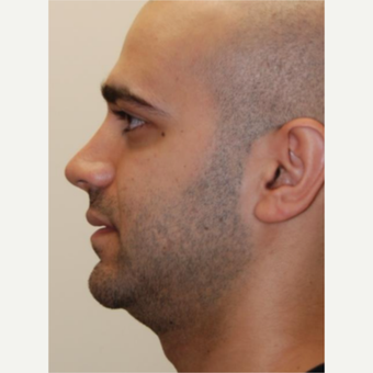 18-24 year old man treated with Rhinoplasty after 3143611