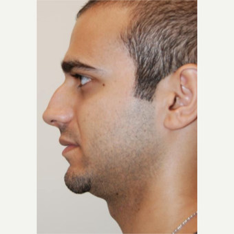 18-24 year old man treated with Rhinoplasty before 3143611