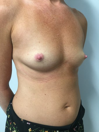 40 year old woman treated with Gummy Bear Style Silicone Gel Implants 3082391