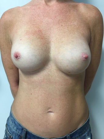 40 year old woman treated with Gummy Bear Style Silicone Gel Implants after 3082391