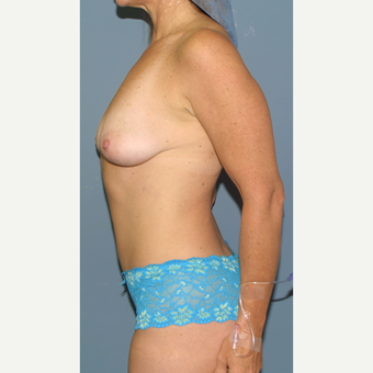 35-44 year old woman treated with Breast Lift with Implants before 3512721