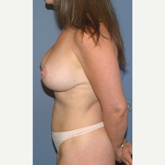 35-44 year old woman treated with Breast Lift with Implants after 3512721