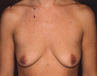 Breast Enlargement before 395701