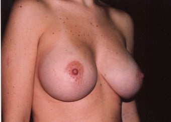 Breast Enlargement 395701
