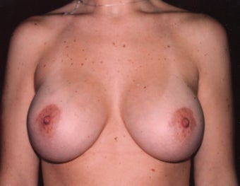 Breast Enlargement after 395701