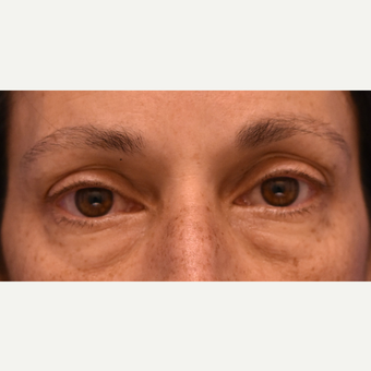 Under eye circles and bags treated with Restylane before 3444124
