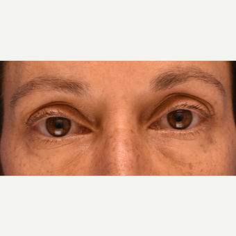 Under eye circles and bags treated with Restylane after 3444124