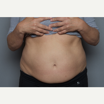 55-64 year old woman treated with SculpSure before 3584217