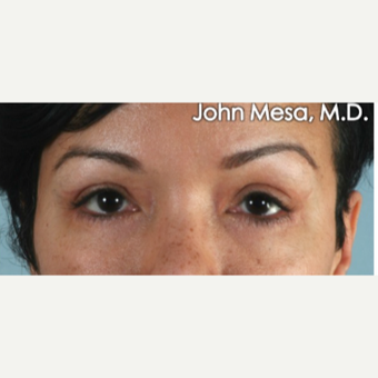 35-44 year old woman treated with Eye Bags Treatment after 3659884