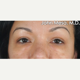 35-44 year old woman treated with Eye Bags Treatment before 3659884
