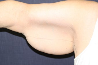 Brachioplasty (Arm Lift) 508321