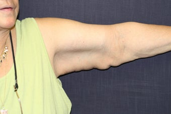 Brachioplasty (Arm Lift) after 508321