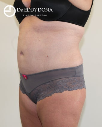 35-44 year old woman treated with Tummy Tuck 2862505