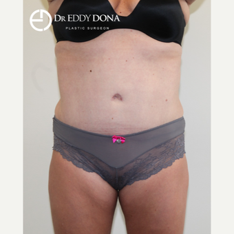 35-44 year old woman treated with Tummy Tuck after 2862505