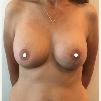45-54 year old woman treated with Breast Lift with Implants after 3761379