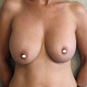 45-54 year old woman treated with Breast Lift with Implants before 3761379