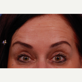 45-54 year old woman treated with Botox after 3168987