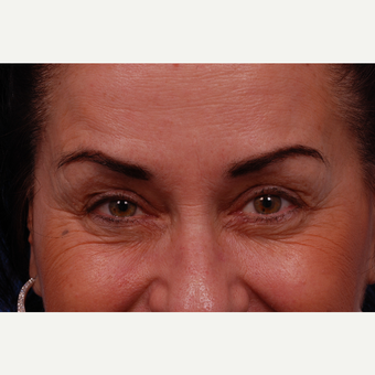 45-54 year old woman treated with Botox before 3168987