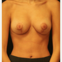 18-24 year old woman treated with Breast Lift after 3738243