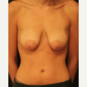 18-24 year old woman treated with Breast Lift before 3738243