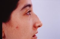 Rhinoplasty before 3446449