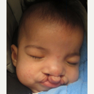 17 or under year old man treated with Cleft Lip And Palate Repair before 3696175