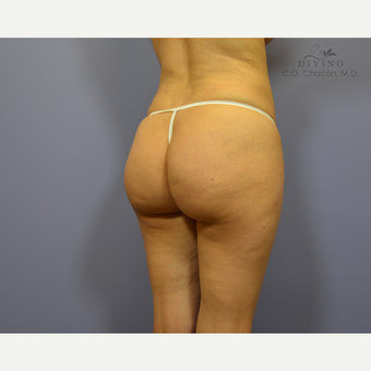 25-34 year old woman treated with Brazilian Butt Lift Revision before 3421763