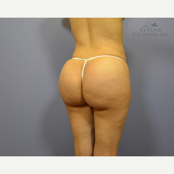 25-34 year old woman treated with Brazilian Butt Lift Revision after 3421763
