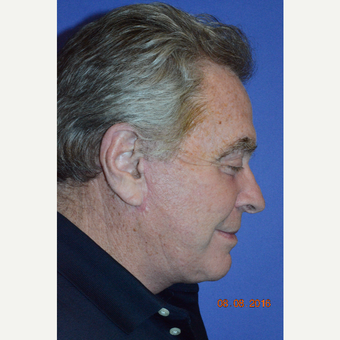 65-74 year old man treated with Liquid Facelift after 3226892