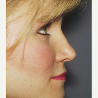 25-34 year old woman treated with Rhinoplasty after 3711494