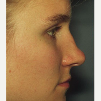 25-34 year old woman treated with Rhinoplasty before 3711494