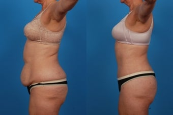 Lipo/Tummy Tuck: 59-Year-Old Woman 1050719