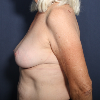 65-74 year old woman treated with Breast Reduction (view 2 of 2) after 3129220