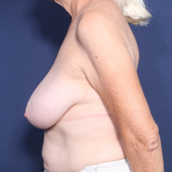 65-74 year old woman treated with Breast Reduction (view 2 of 2) before 3129220