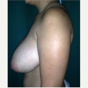 25-34 year old woman treated with Breast Reduction before 1686265