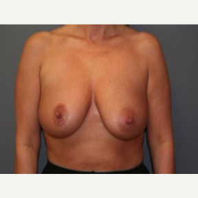35-44 year old woman treated with Breast Lift before 3339123